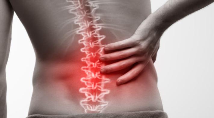 Approche McKenzie: Un outil pour une prise en charge efficace des douleurs lombaires