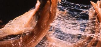 Les fascias: ces tissus omniprésents et méconnus