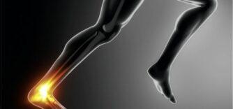 Entorse à la cheville : Conseils d'experts en physiothérapie