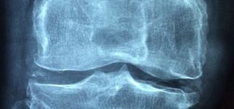 ARTHRITIS vs ARTHROSIS (OSTEOARTHRITIS)