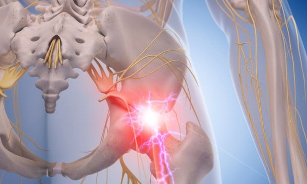 Sciatica or Piriformis Syndrome?