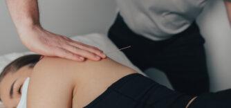 Puncture physiothérapique avec aiguille sèche (Aiguille sous le derme ou « dry-needling »)