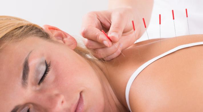 L'acupuncture et la gestion de l'anxiété
