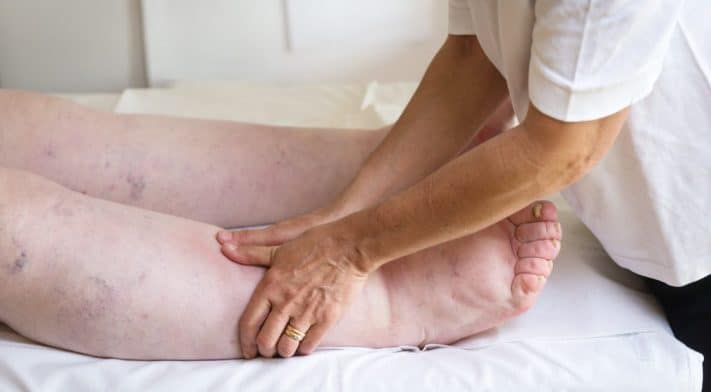 What is lymphedema?