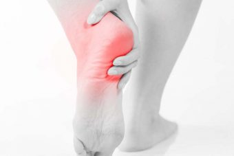 Plantar Fasciitis: Managing your foot pain
