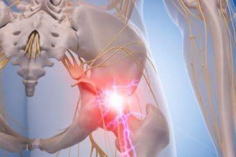Sciatica or Piriformis Syndrome?